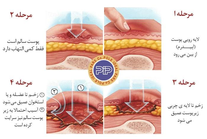 علائم و نشانه های زخم بستر