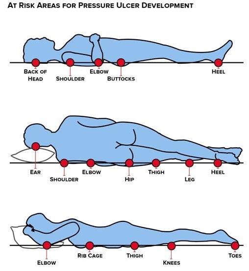 نواحی در معرض تشکیل زخم بستر