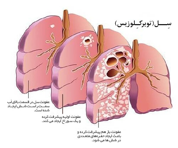 مراحل پیشرفت بیماری سل