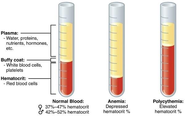 فرمهای ارثی یا فامیلیال اریتروسیتوز نادر هستند