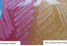 برای نگهداری باکتری برای مدتهای بسیار زیاد اغلب روش لیوفیلیزه کردن استفاده میشود