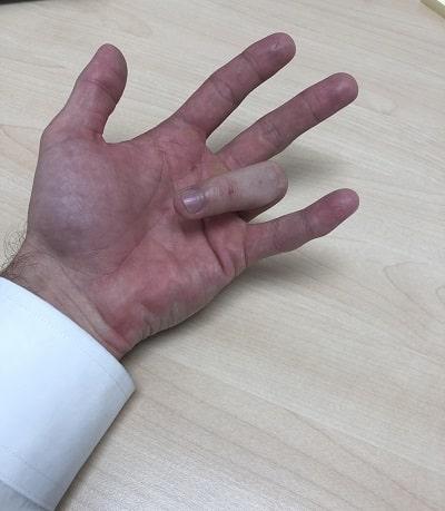 انگشت ماشهای