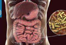 دیسانتری باسیلی: بیماریزایی شیگلا