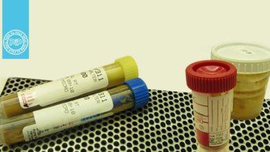 آزمایش نمونه مدفوع به لحاظ عوامل باکتریایی