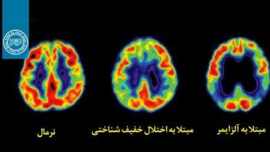 روز جهانی بیماری آلزایمر
