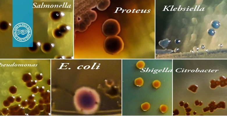 تست های شناسایی آنتروباكترياسه ها