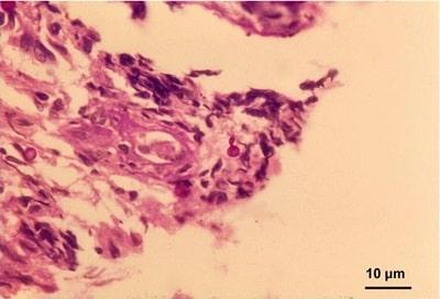 سلولهای مخمری اسپوروتریکس شنکئی