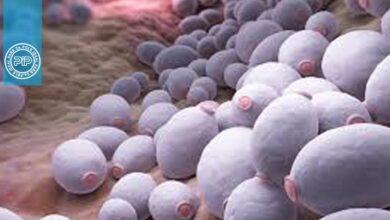 اصول و روشهای نشان دادن قارچها در نمونههای کلینیکی