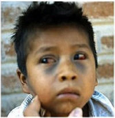 پاره شدن عروق موئینه ی چشم و کبودی صورت در اثر سرفه های شدید در پرتوسیس