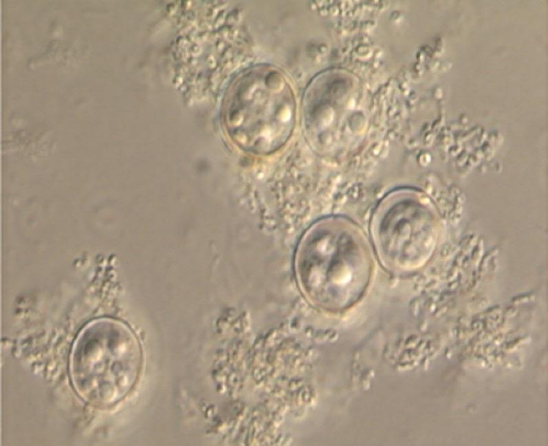 ااسیست های سیکلوسپورا در آزمایش مدفوع