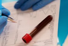 تاثیر بیوتین بر روی آزمایش خون
