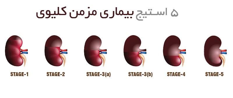 5 استیج بیماری مزمن کلیوی
