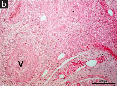 نکروز و التهاب فیبرینوئید فعال - رنگ آمیزی پرشین بلو