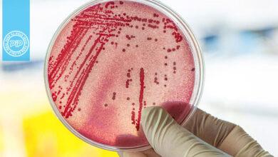 شمارش باکتری اشریشیا کلی و کلی فرمها در مواد غذایی